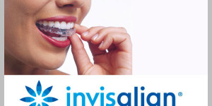 ottawa downtown dentist invisalign braces