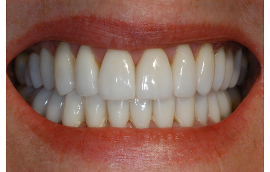 Gingival recession treatment Ottawa