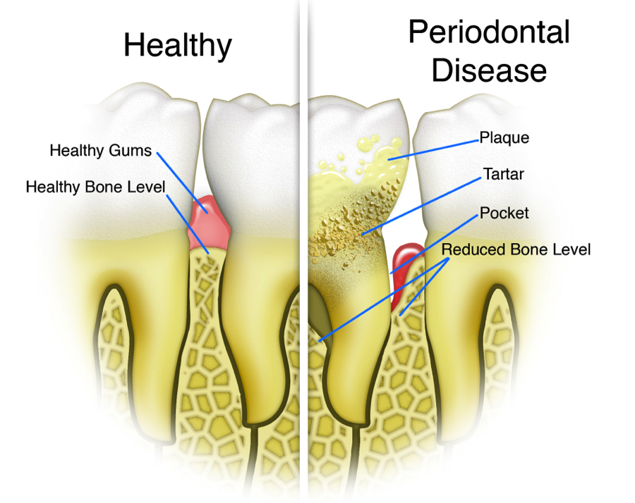 periodental disease