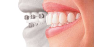 ottawa downtown dentist orthodontics