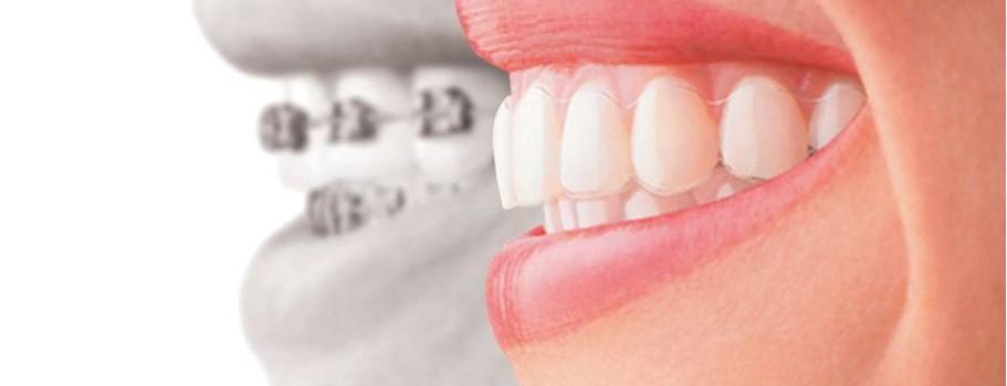 Downtown Ottawa Orthodontics