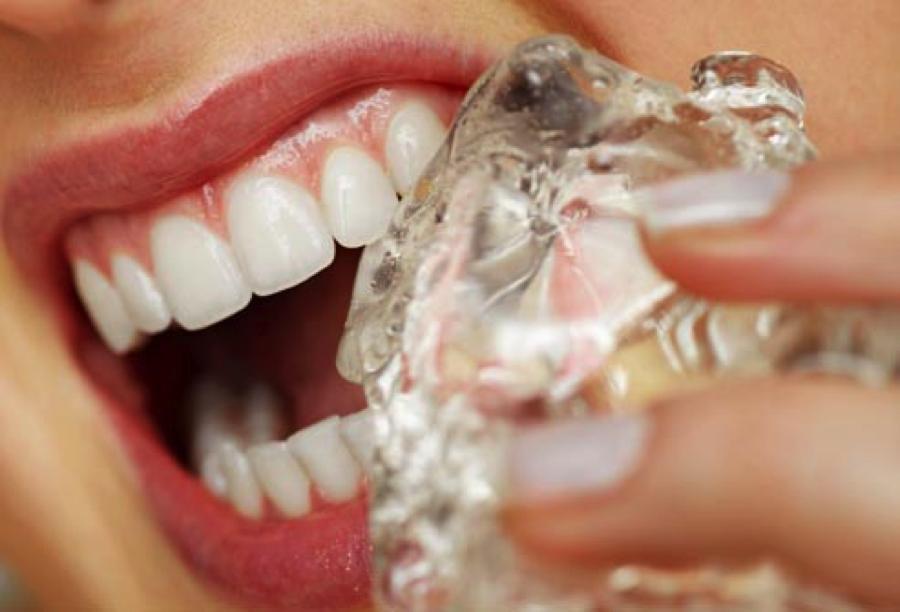 Bad Habits- Florence Dentistry