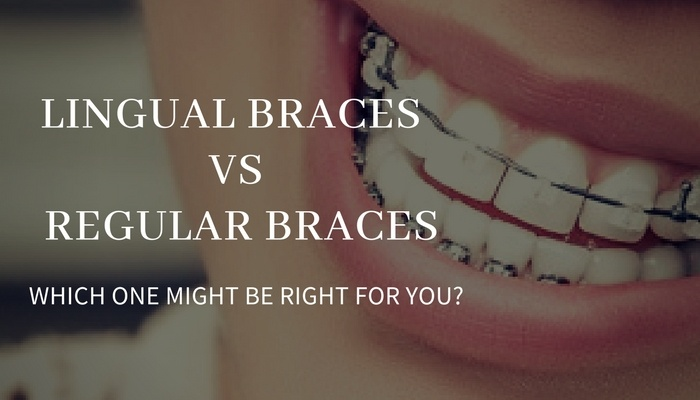 lingual vs. regular braces