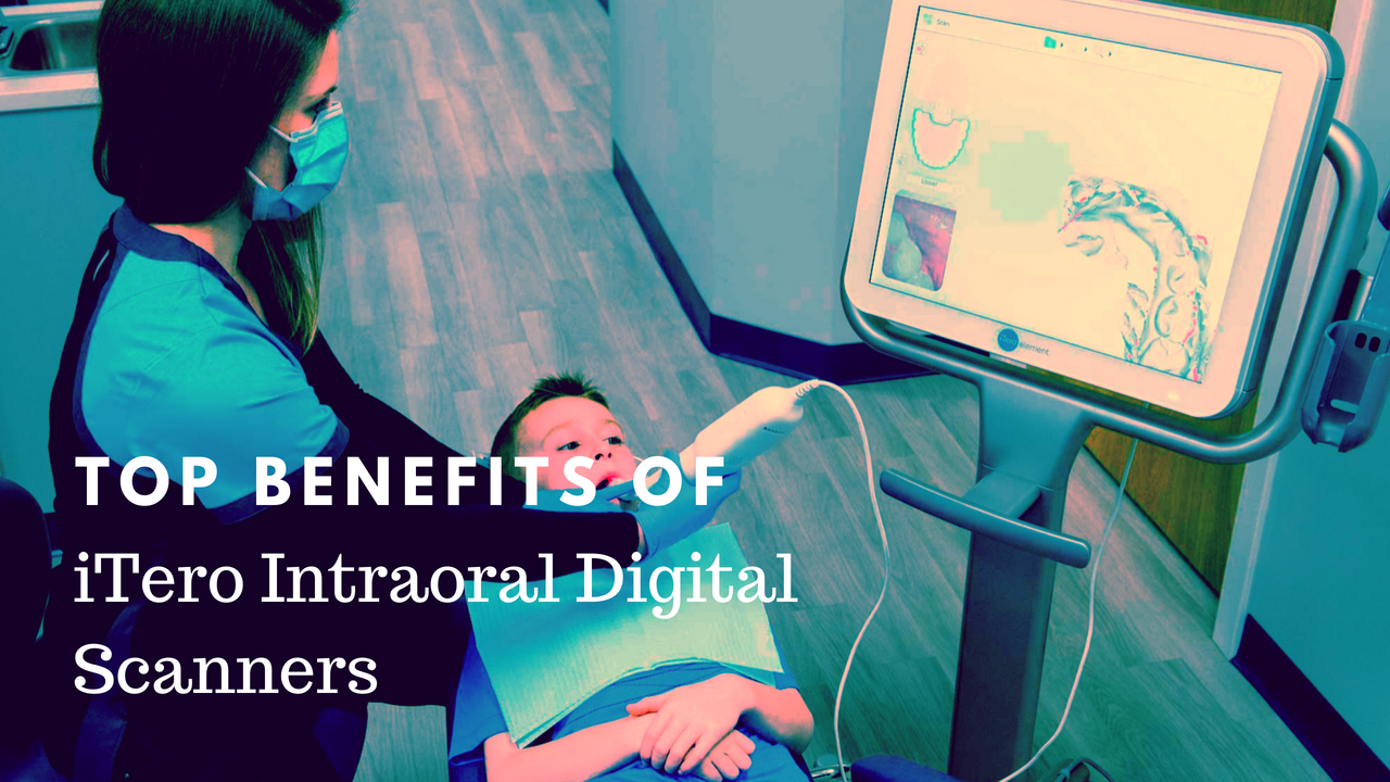 Top Benefits of iTero Intraoral Digital Scanners